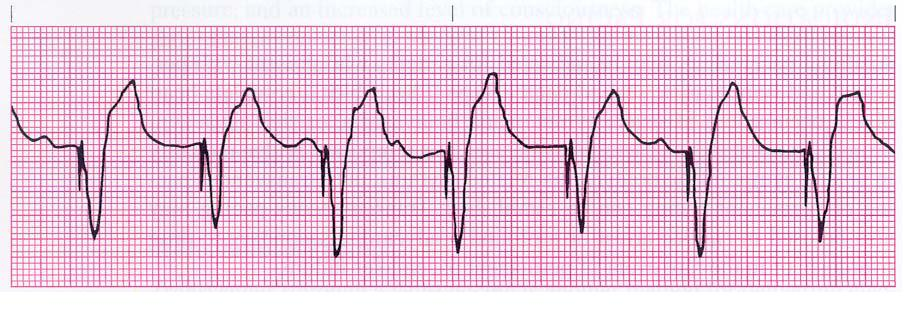 Ekg cardiac strip